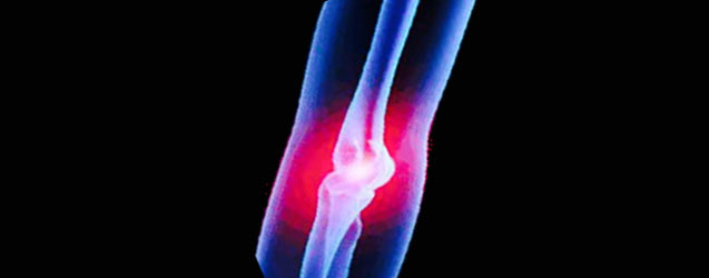 Elbow Conditions and Physical Therapy