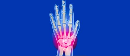 Wrist Conditions and Physical Therapy