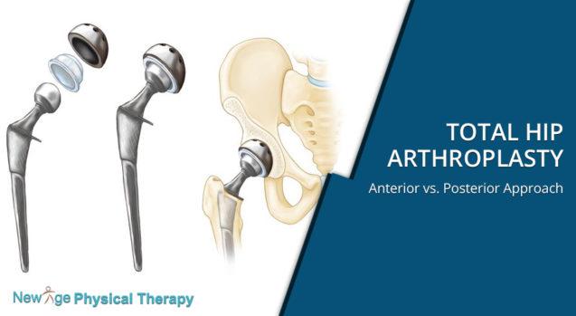 Total Hip Arthroplasty – Anterior vs. Posterior Approach