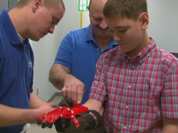 Central Carolina Technical College Develops Prosthetic Hand for Turbeville Teen