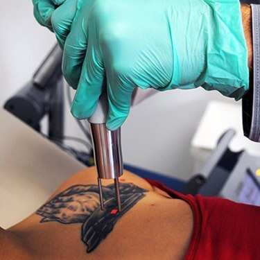 why tattoos are permanent