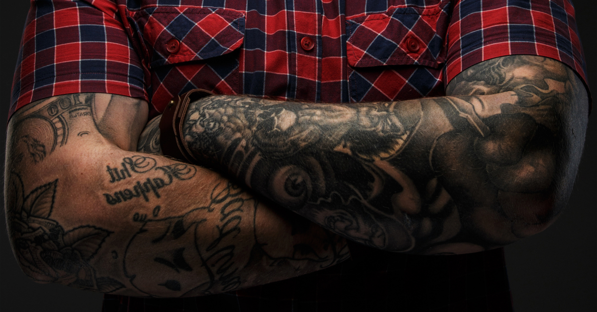 Sleeve Tattoo Removal