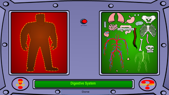 Arnold Lost his Organs
