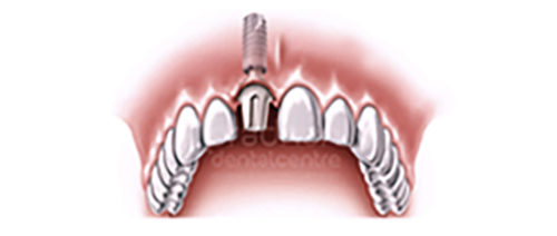 implants-dentistry-003