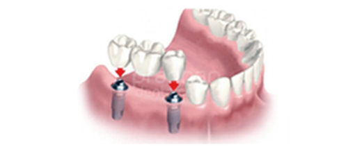 implants-dentistry-004