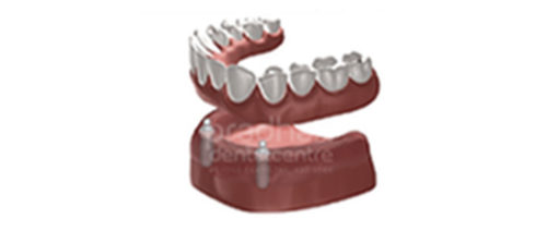 implants-dentistry-006