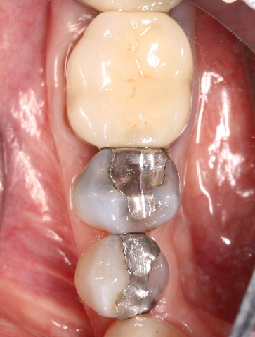 Tooth #29 has deep facial abfraction and large amalgam with cracks evident.  Tx Plan:  Build-up and crown.