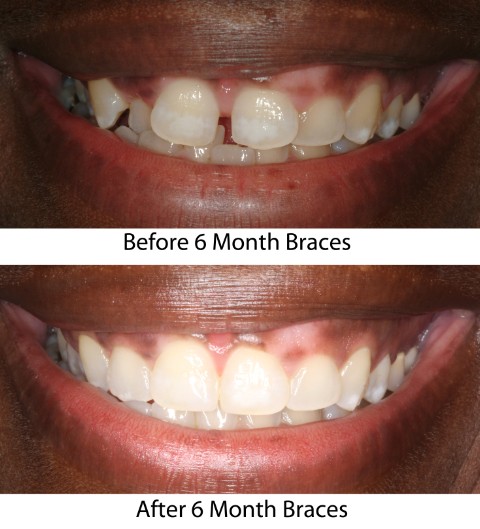 Dramatic Six Month Smiles before & after.