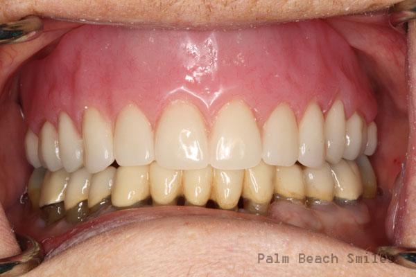 RL Implant Denture02