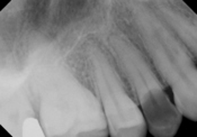 Pre-op x-ray from previous dentist.