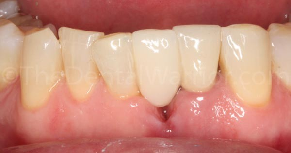 I sandblasted the proximal surfaces of the pontic and the adjacent teeth.  I applied silane (Interface by Apex).  Then bonded with Scotchbond Universal and a flowable composite.