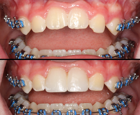 Ankylosed centrals resulted in a reverse smile line. Corrected with composite bonding.