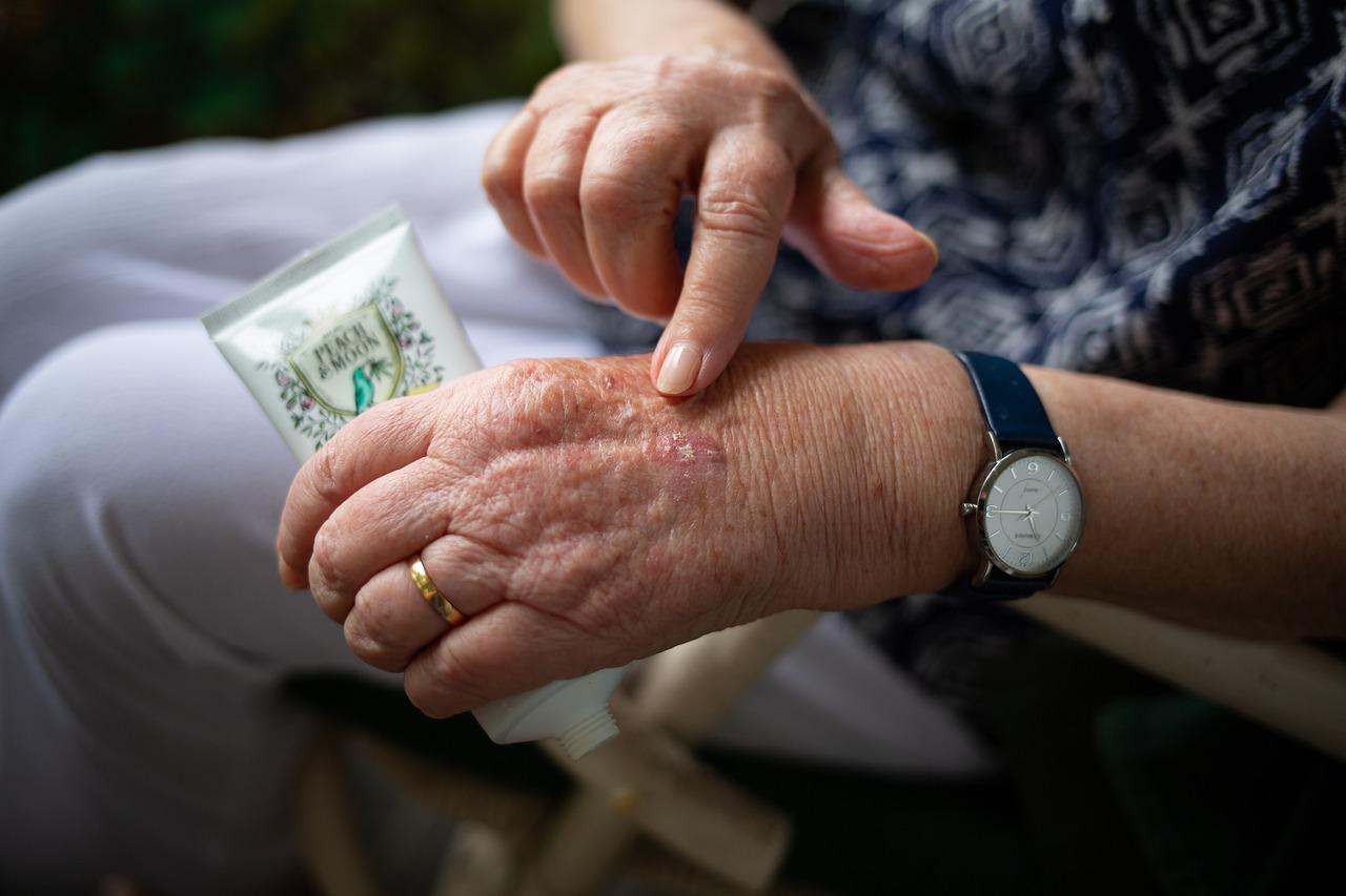 arthritis-senior