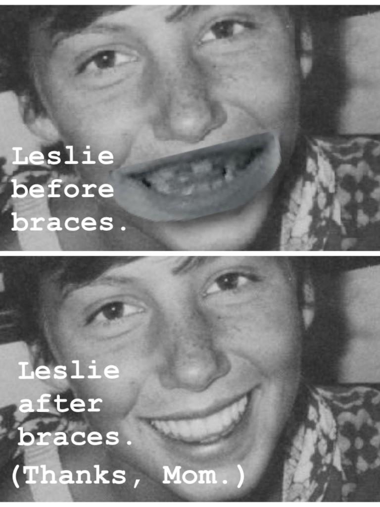 before after braces argument