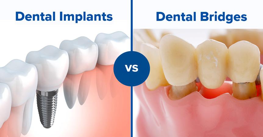 implants vs bridges