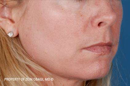 After-ZO Medical Skin Care Results