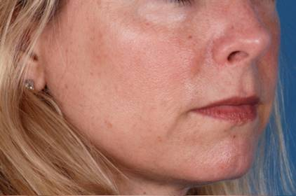 Before-ZO Medical Skin Care Results