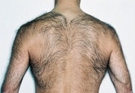 Before-Laser Hair Removal
