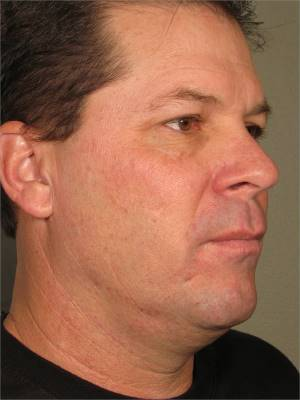 Before-Ultherapy Chin Reduction