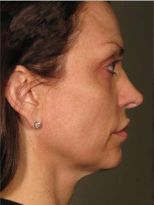 After-Ultherapy Face-Lift