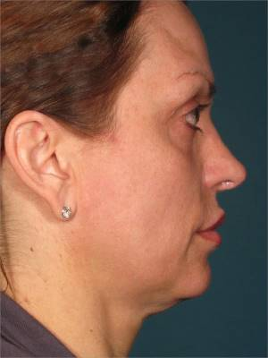 Before-Ultherapy Face-Lift