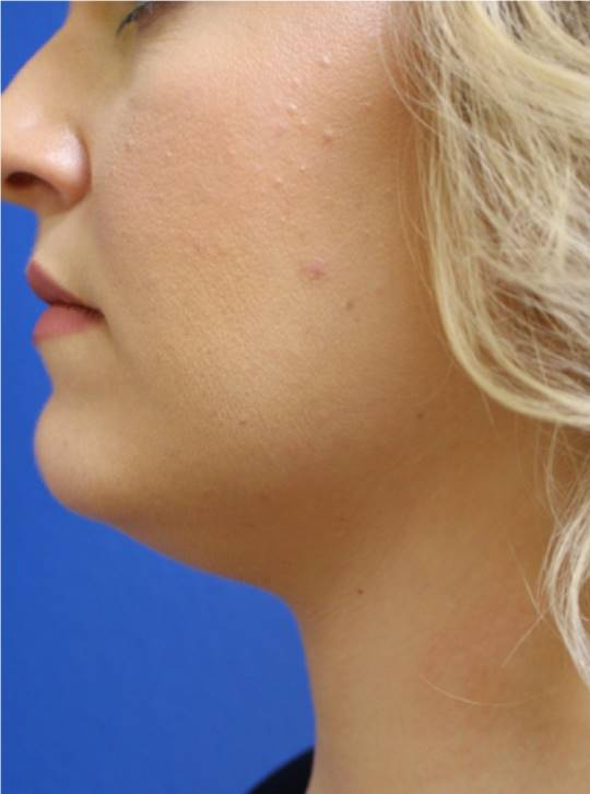 After-Kybella Results