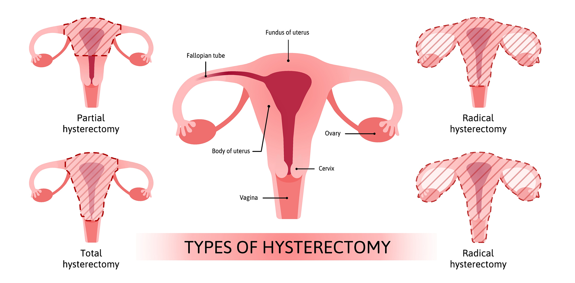 Different Types of Hysterectomy