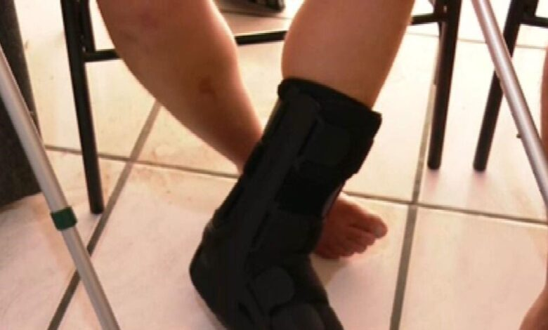 Casal diz ter sido vítima de homofobia e agressões em boate; homem afirma que dedos do pé foram quebrados. (Foto: Reprodução / TV Globo)