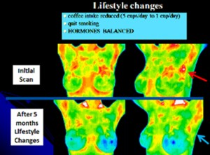 Hormone Imbalance Thermogram