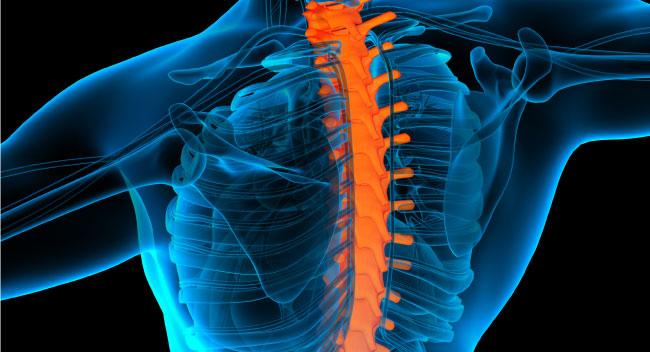 Spondylosis / Spondylitis