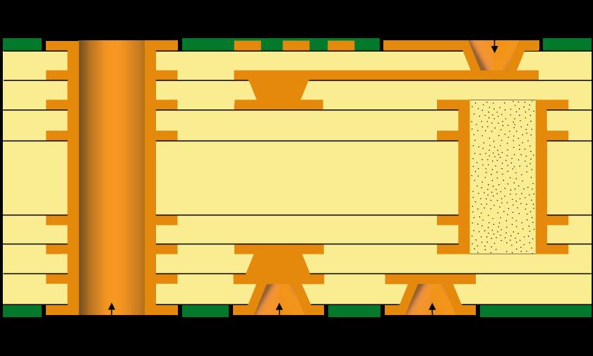 hdi type 3