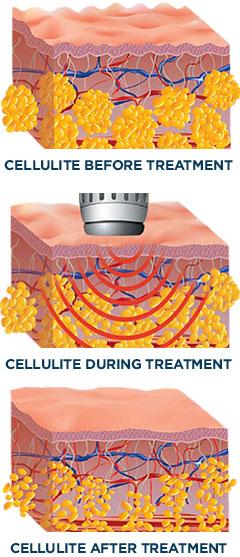 slimspec cellulite treatment