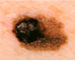 Severely Atypical Mole