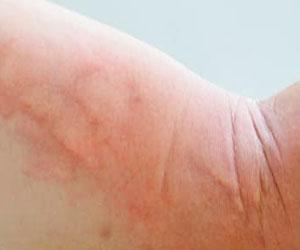 skin condition: rash