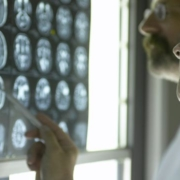 Two doctors looking at brain scan.