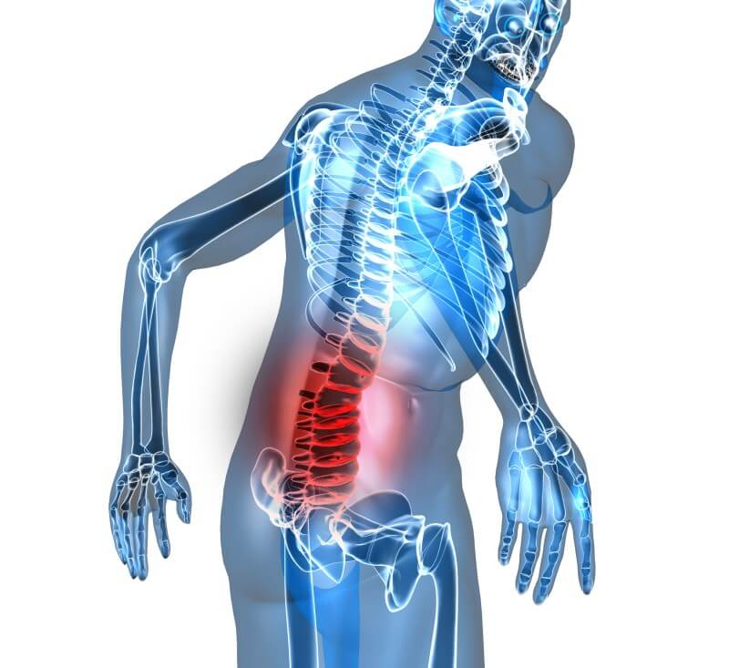 Exercise for the Prevention of Low Back Pain