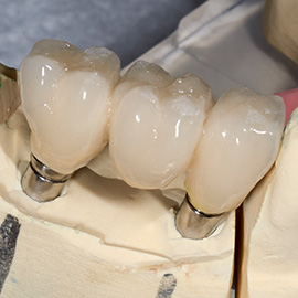 implant-retained-bridges-2