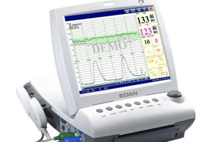Edan Fetal Monitor