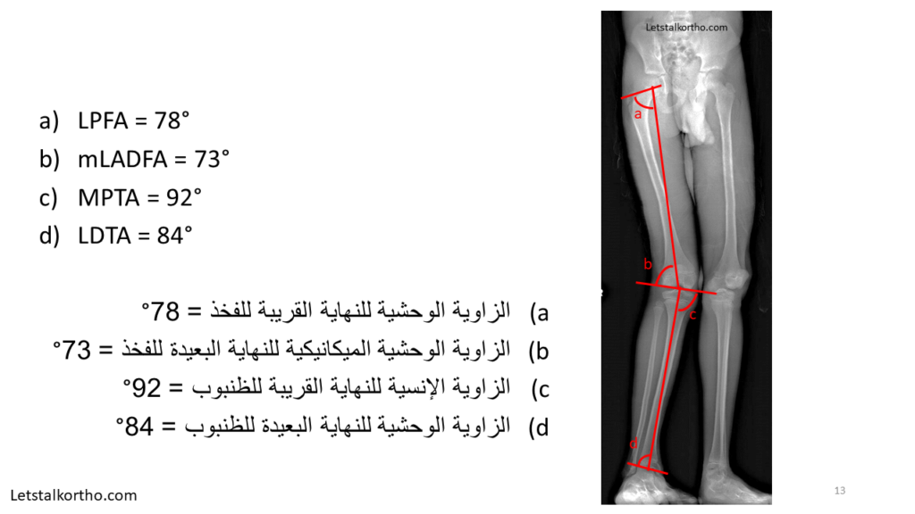 Deformity Analysis (13)