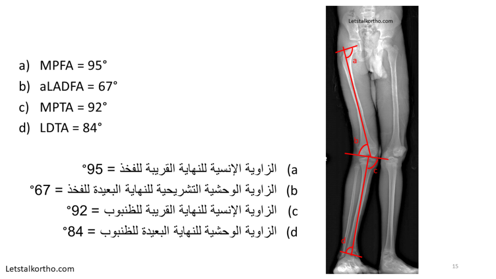Deformity Analysis (15)