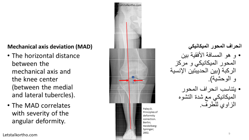 Deformity Analysis (9)