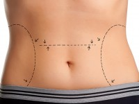 Tummy Tuck Weston - Abdominoplasty Weston
