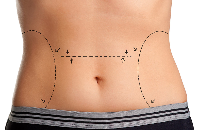 Kiss Stubborn Body Fat Goodbye with Liposuction