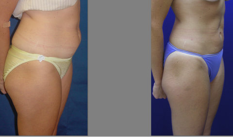 Liposuction - Abdomen and Thighs