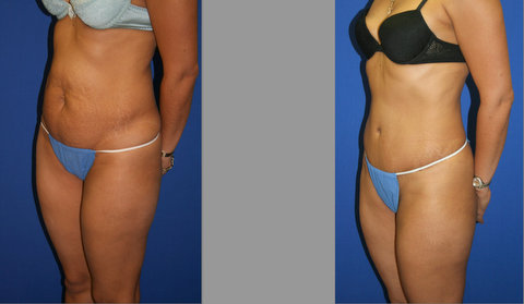 Abdominoplasty, Tummy Tuck Before and After
