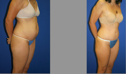 Abdominoplasty, Liposuction, Tummy Tuck Before and After