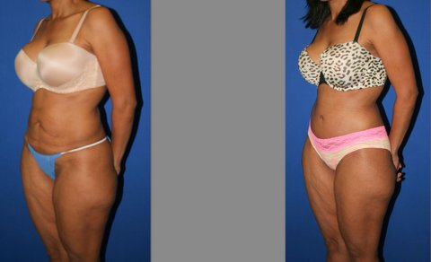 Tummy Tuck before and after, Abdominoplasty