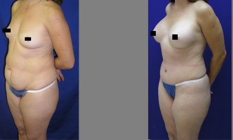 Mommy Makeover, Tummy Tuck Before and After, Breast Augmentation, Abdominoplasty and Liposuction of Hips