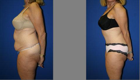 Abdominoplasty, Abdominoplasty weston, Tamy Faierman Plastic Surgery Weston