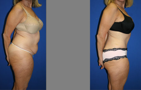 Abdominoplasty, Abdominoplasty weston, Tamy Faierman Plastic Surgery Weston